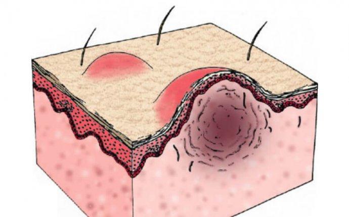 Keloid Disease