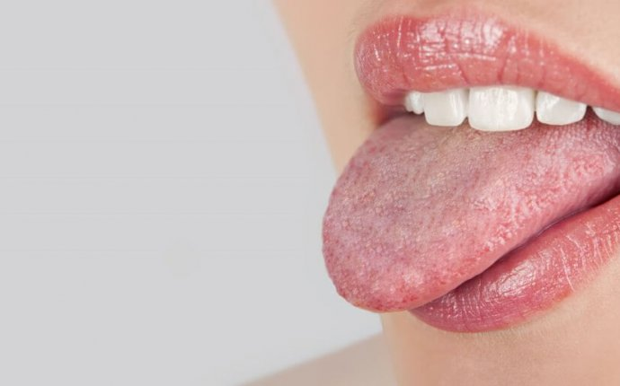 What Is Ayurvedic Tongue Diagnosis?Why Is The Benefits Of Doing It?