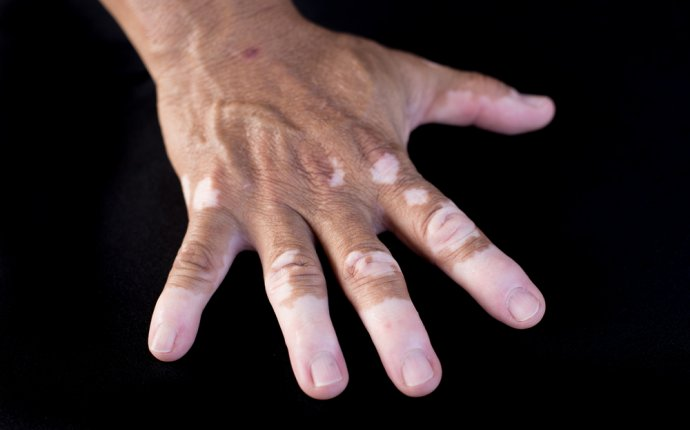 Treatment of Vitiligo in Ayurveda - What is Ayurveda?